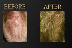 PRF for Hair Restoration