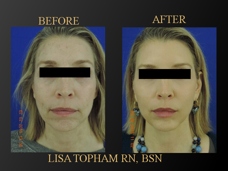 Restylane liquid face lift